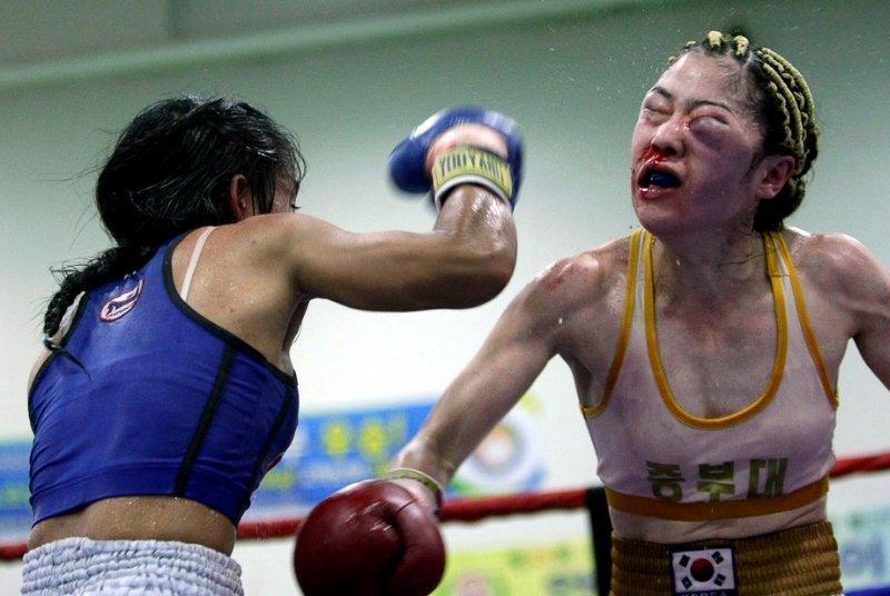 Boxe-femme-blessure-oeil